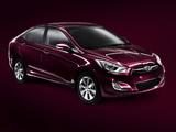 Hyundai Solaris (RB) 2010 photos